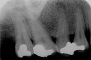 Root Canal Treatment After