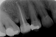 Root Canal Treatment Before