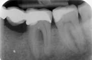 Root Canal Treatment After 2